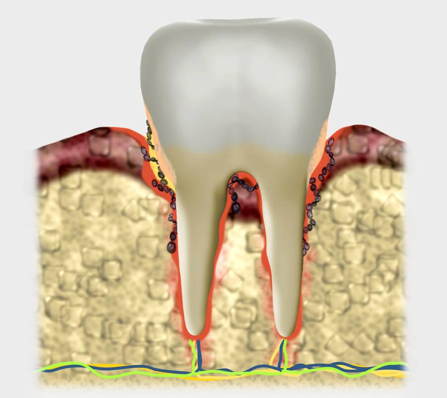 parodontologie-mobile
